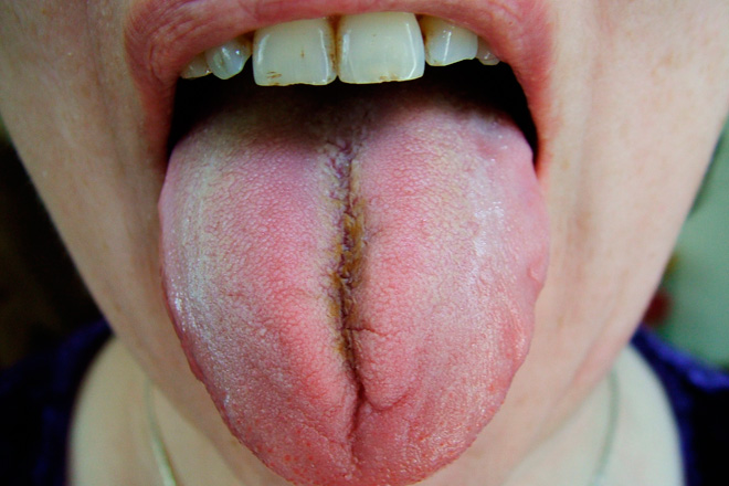кафяв език