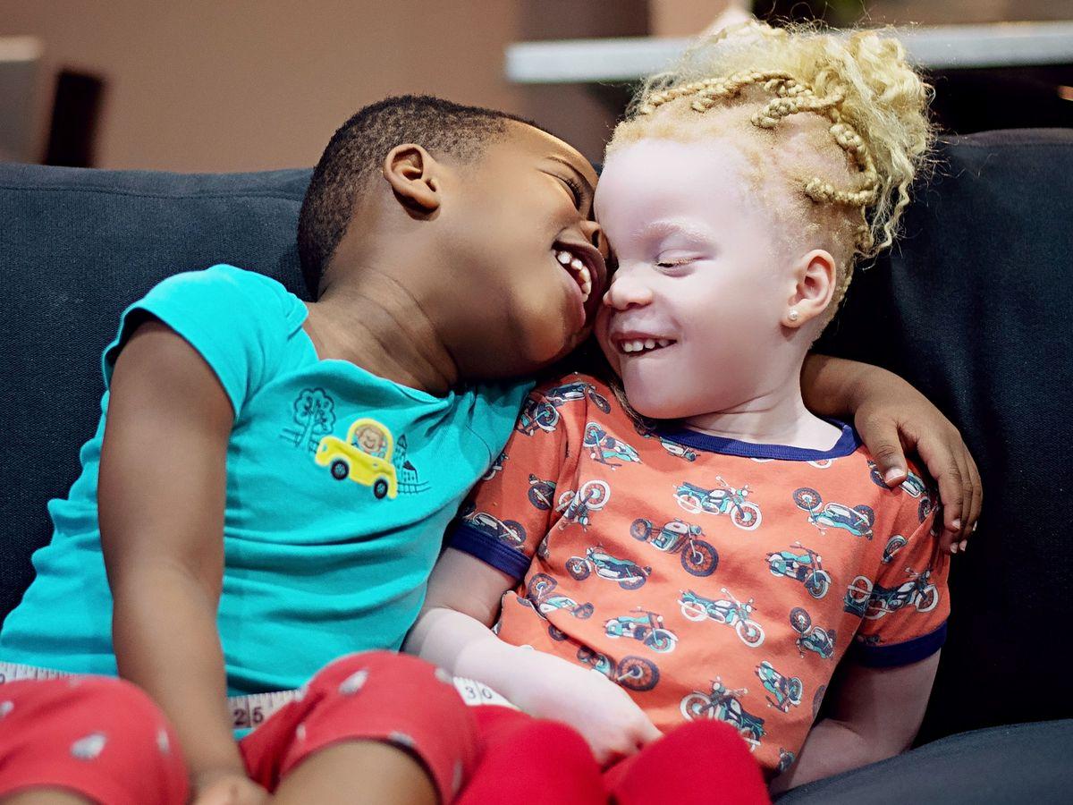 близнаци албиноси