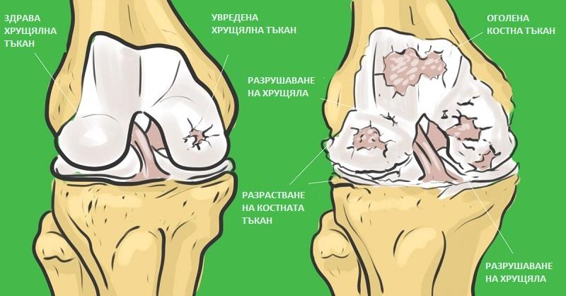 как да се направи желатин за лечение на ставите