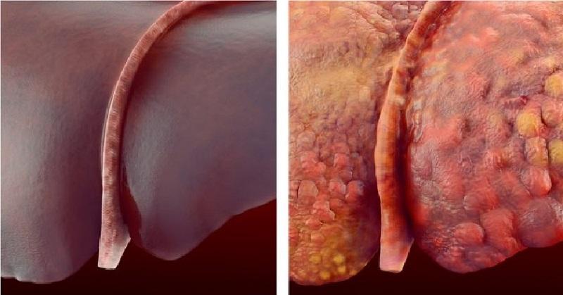Как да се лекува затлъстяването на черния дроб