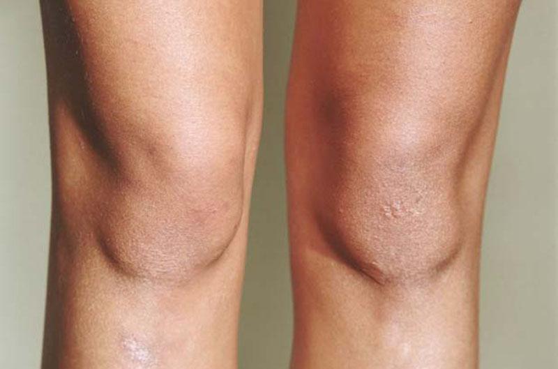 кожата на коленете
