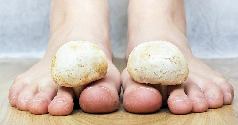 гъбички на краката