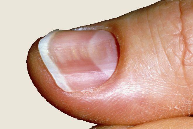 вдлъбнати нокти