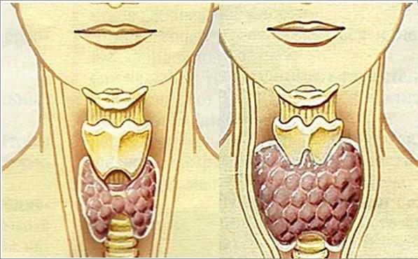 щитовидна жлеза дисфункция