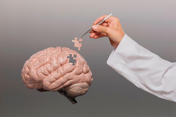 мозък деменция