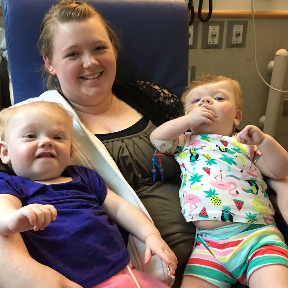 сиамски близначки разделени при раждането