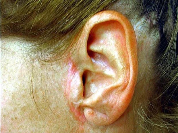 белег на ушите