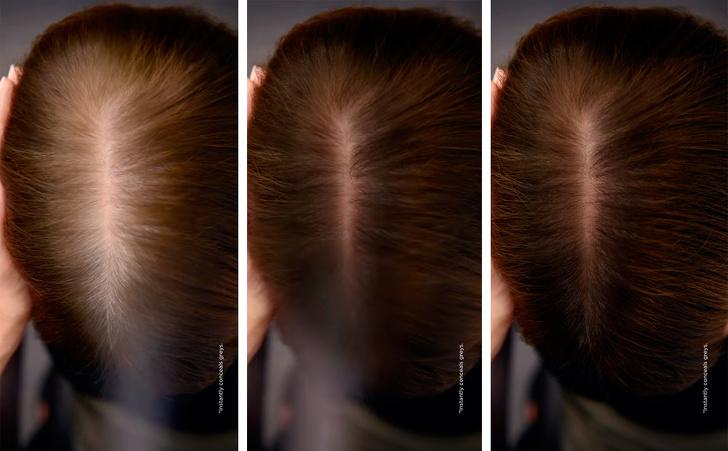 побеляващи коси