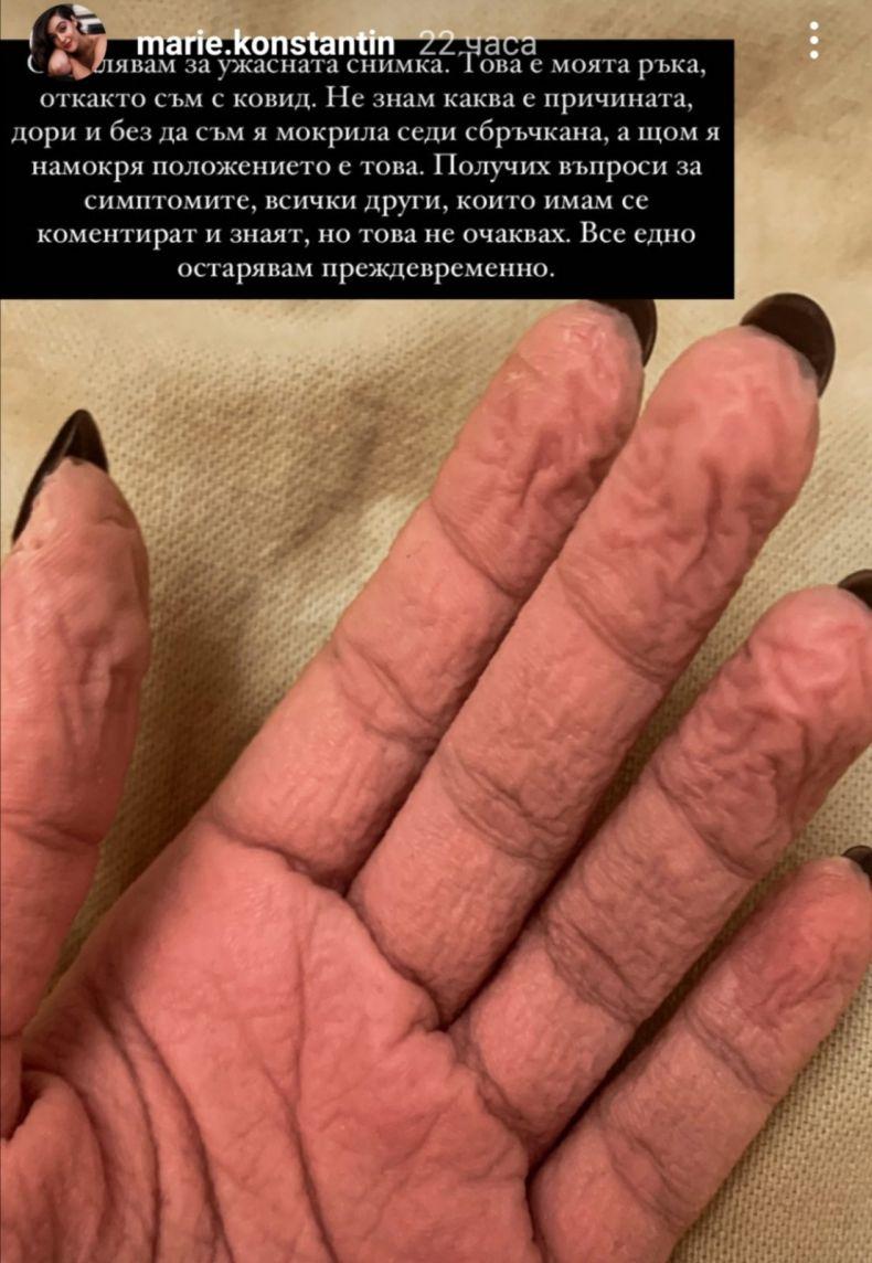 сбръчкана ръка