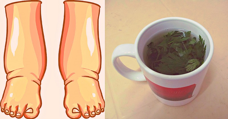 лекарство за отекли крака