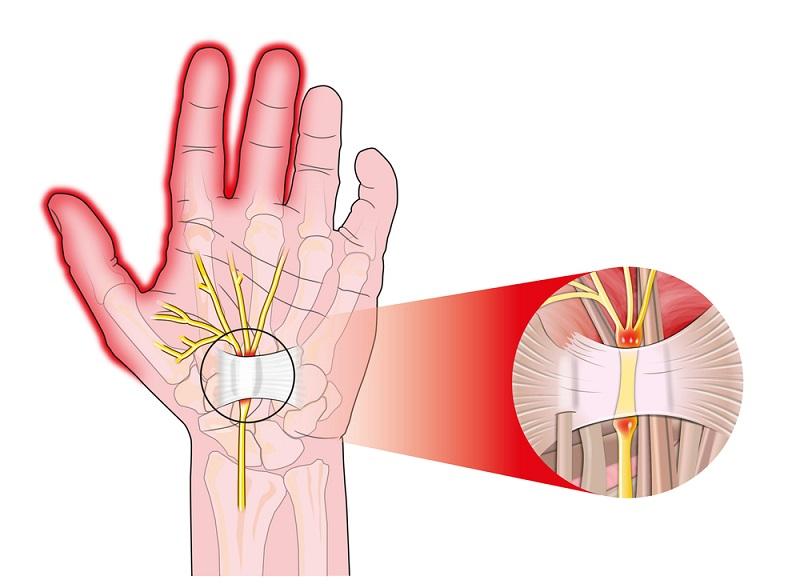 12 причини, поради които имате болки в рамото - и какво да правите
