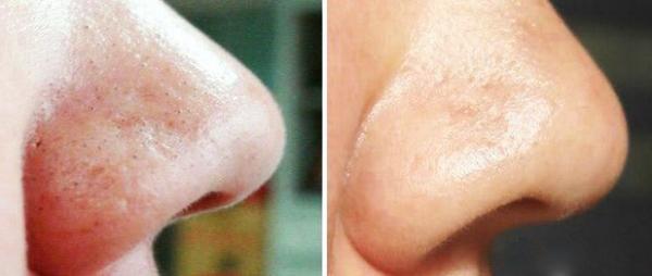 почистена кожа