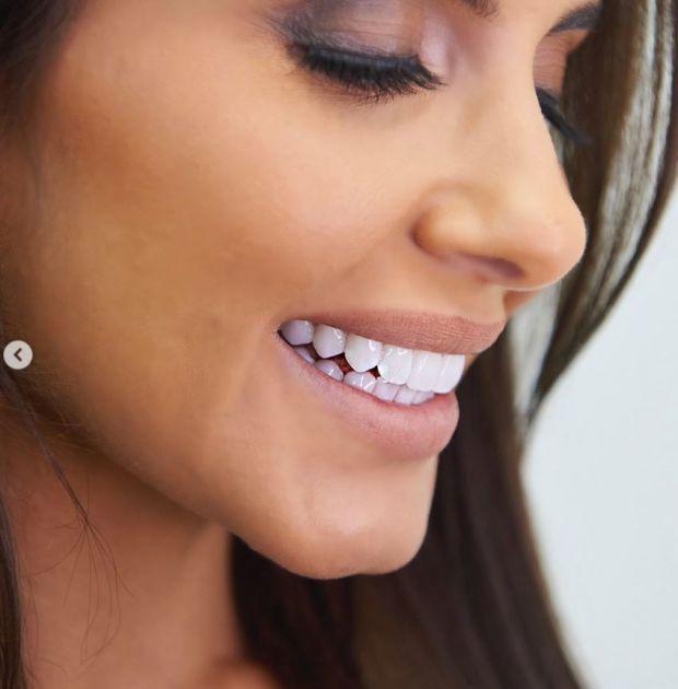 Анелия нови зъби