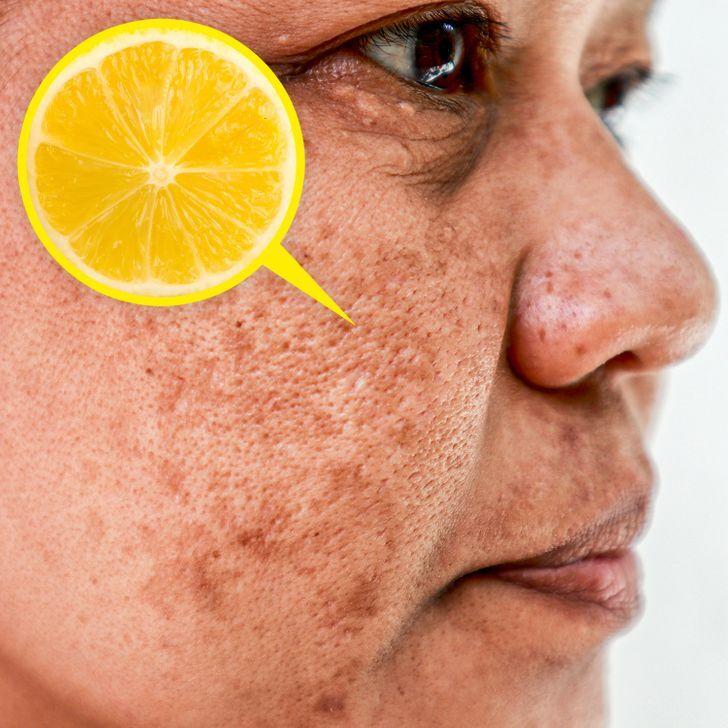 лимон за кожата