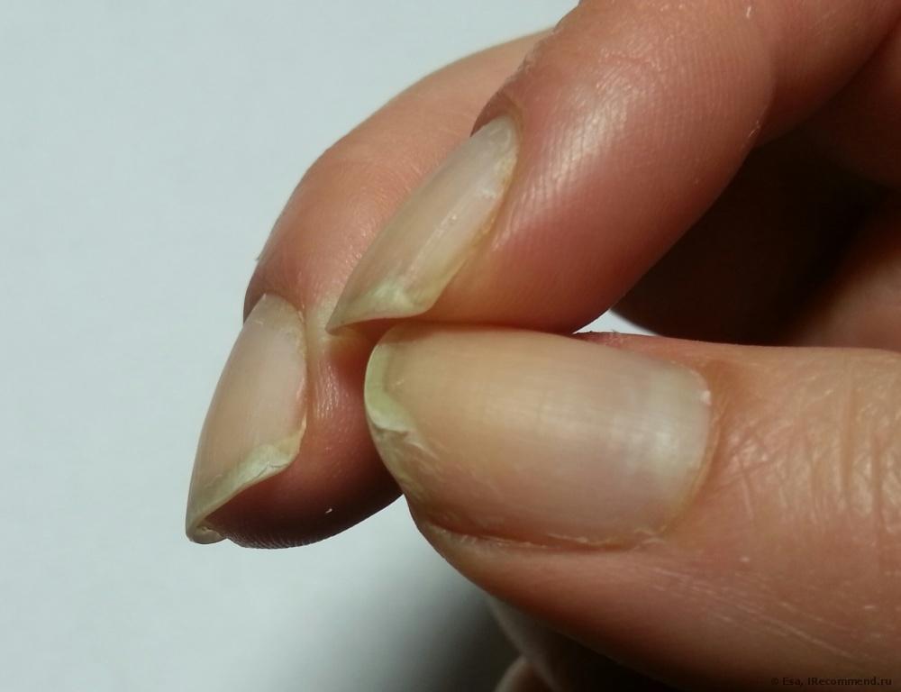 разслоение нокти
