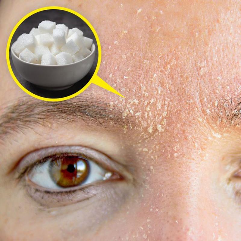 захар за кожата