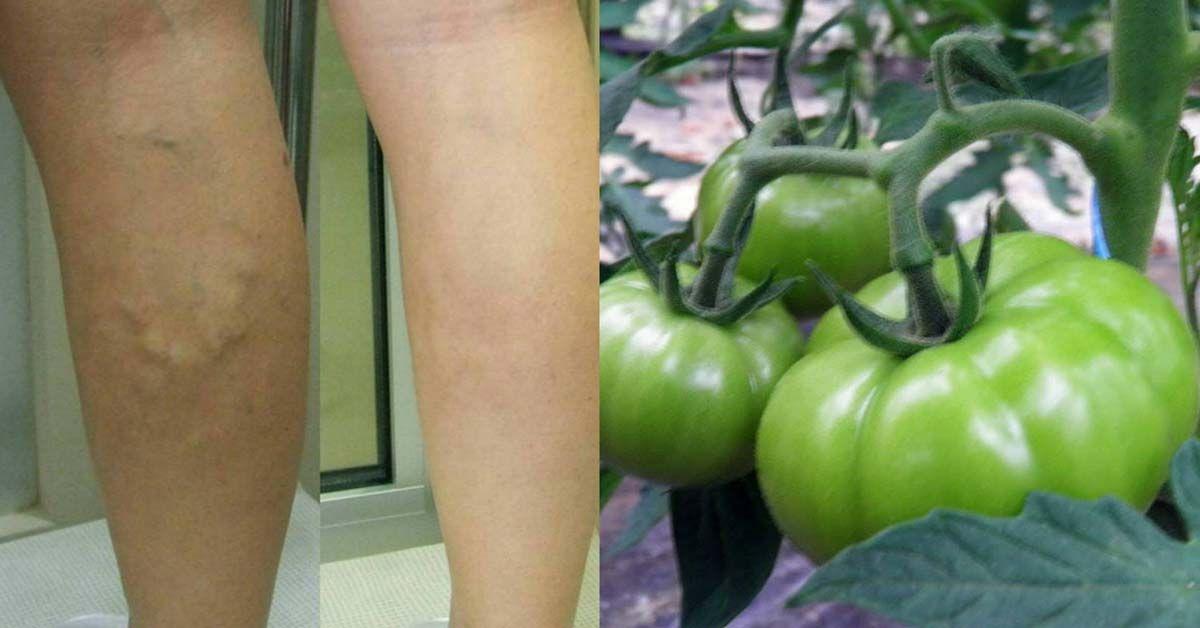 зелени домати при разширени вени