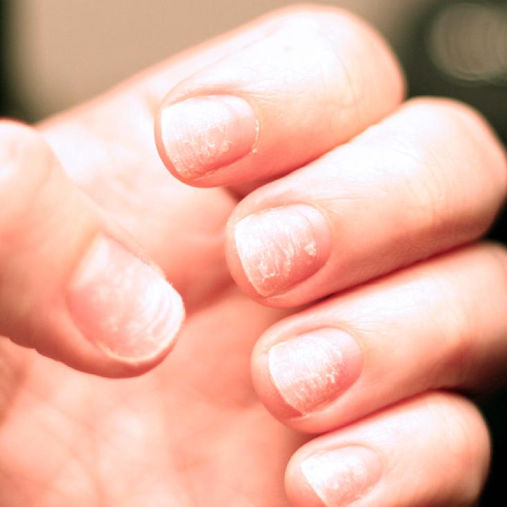 белещи се нокти