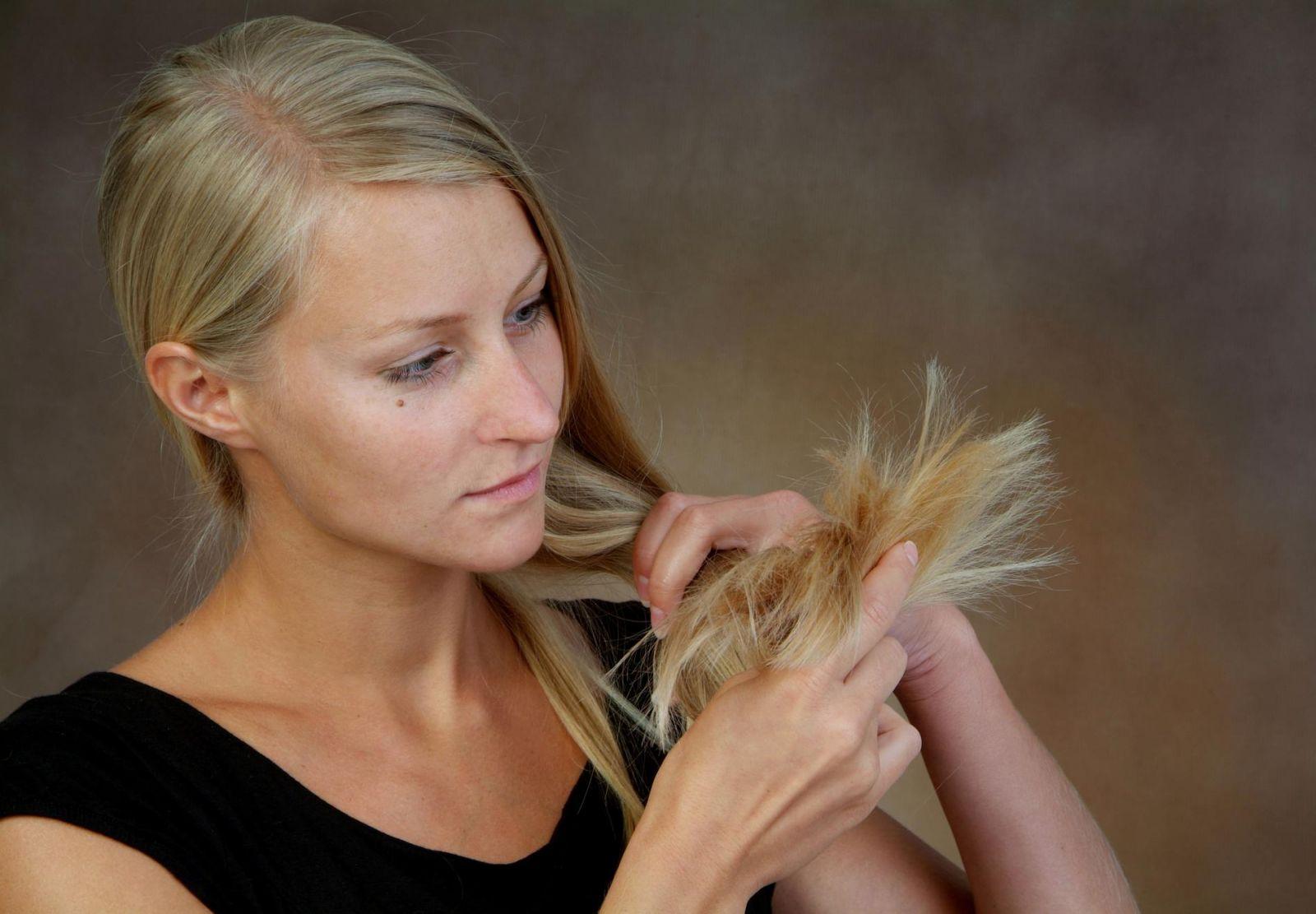 загуба на коса