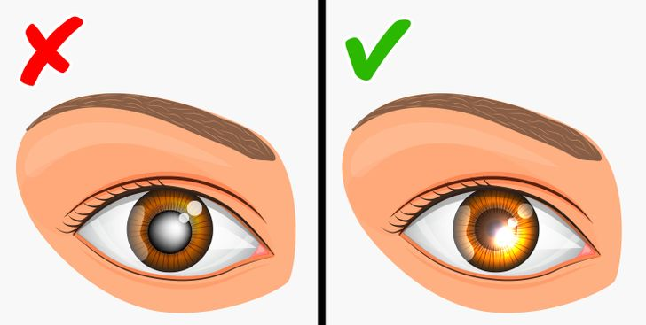 глаукома наследственост