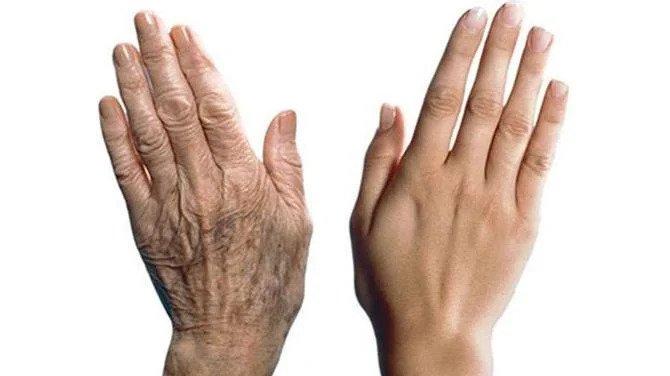 ръце и възраст