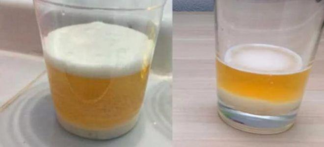 тест за бременност със сода