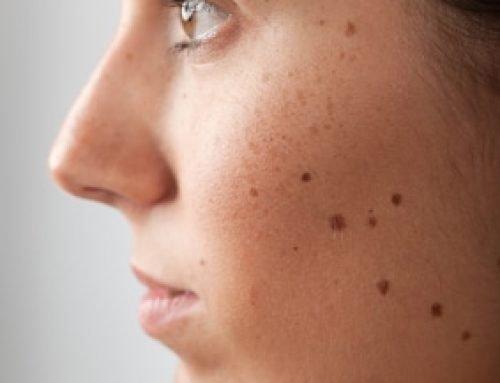 кафяви петна по кожата