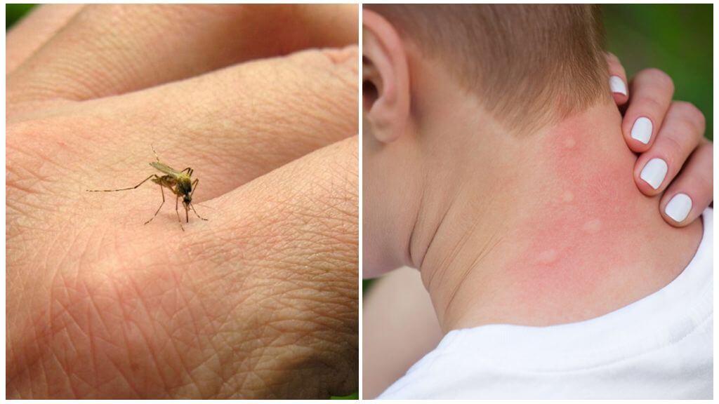 ухапване на комар