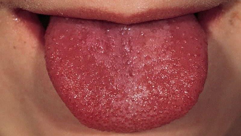 червен език