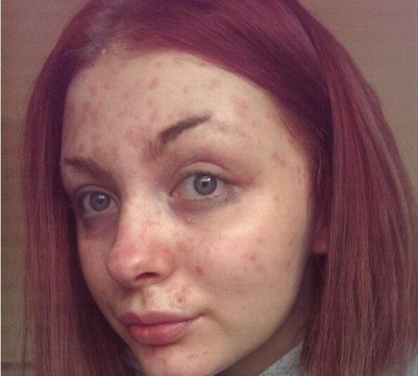 кожа с псориазис