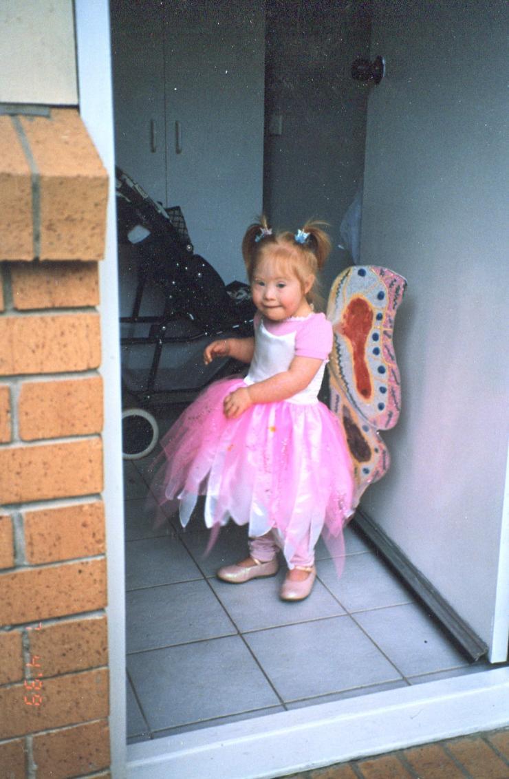момиченце със синдром на Даун