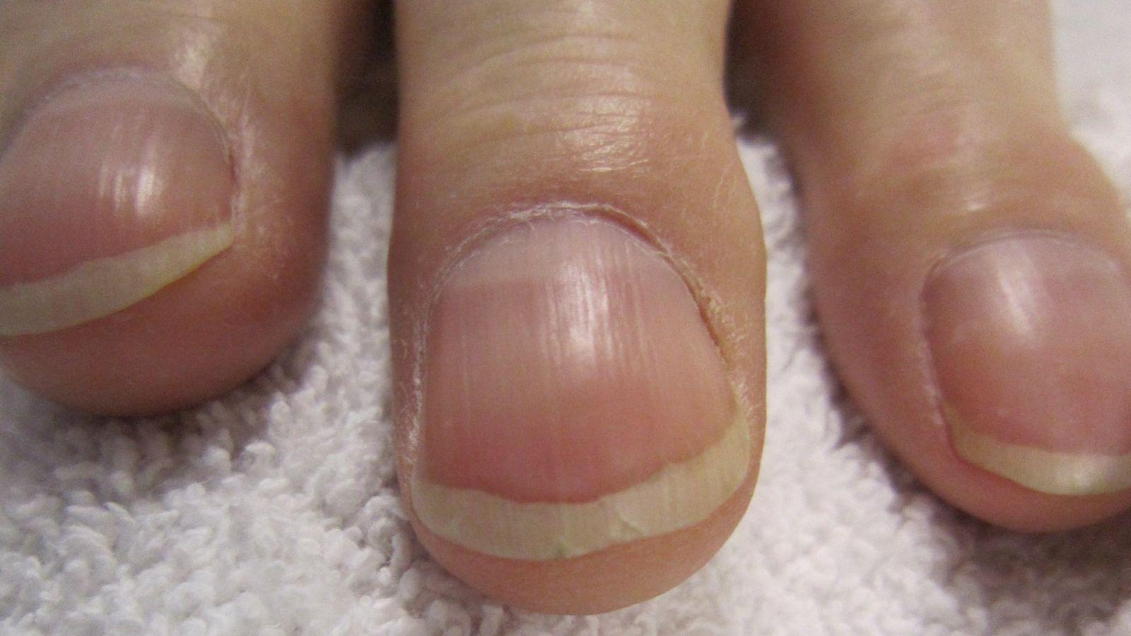 уделбелени нокти