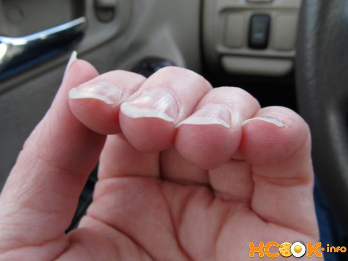 удебелени нокти