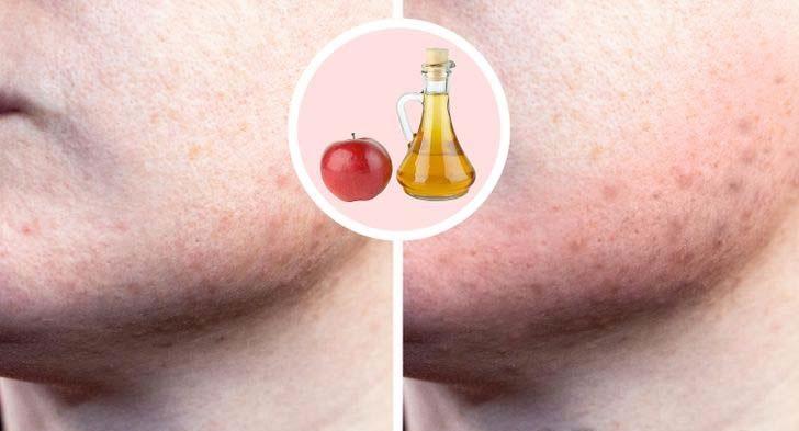 ябълков оцет за кожата