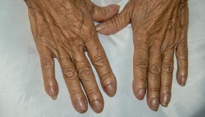 заоблени нокти