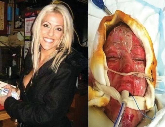 обгорена жена