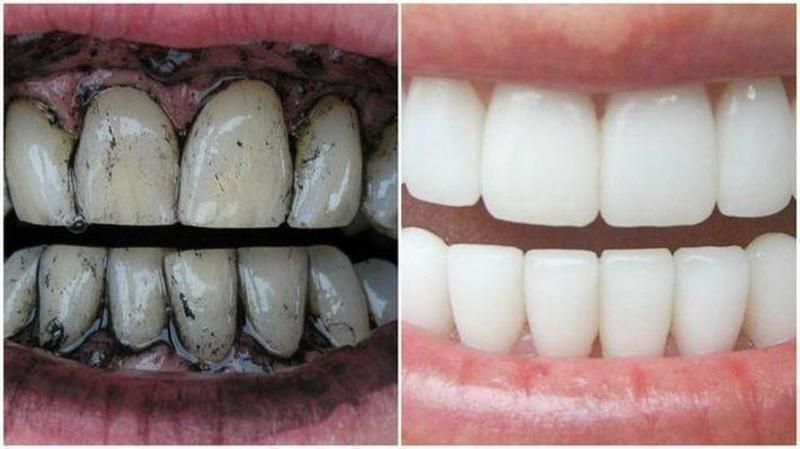 избелване на зъби с въглен