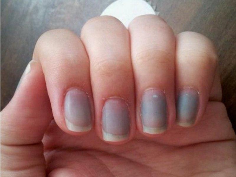 посинели нокти