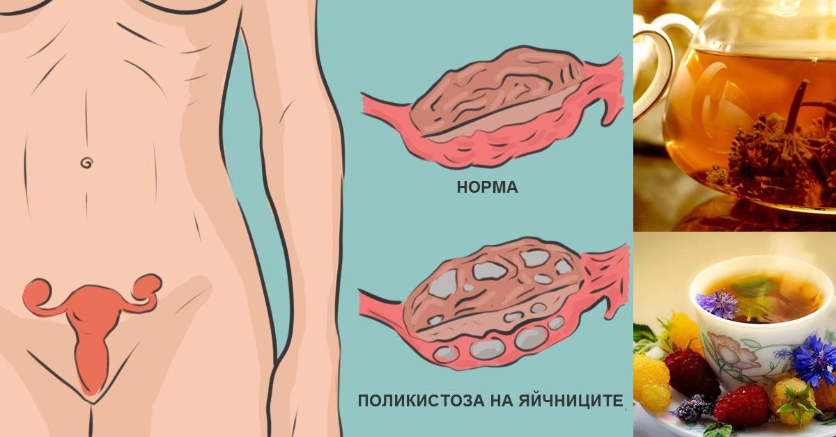 синдром на поликистозни яйчници