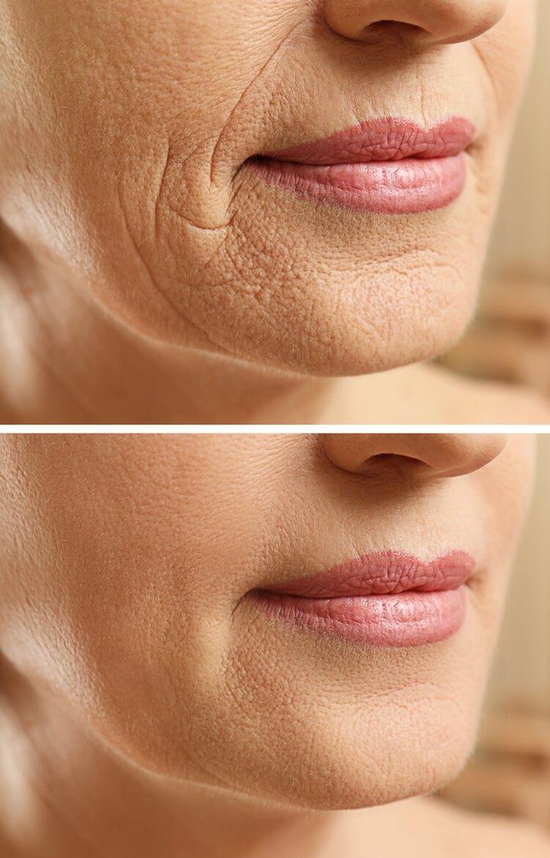 бръчки по кожата
