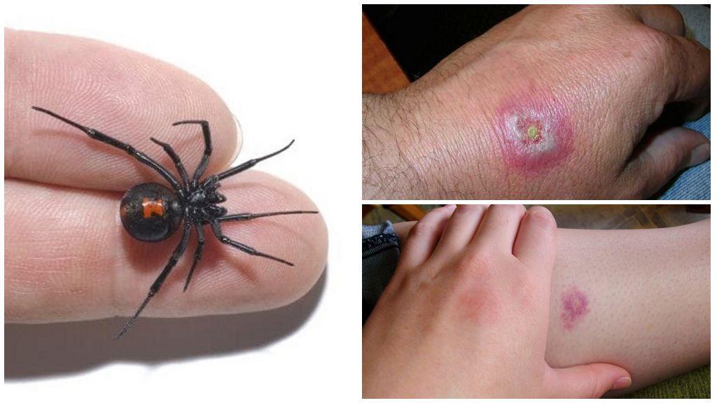 ухапване от паяк