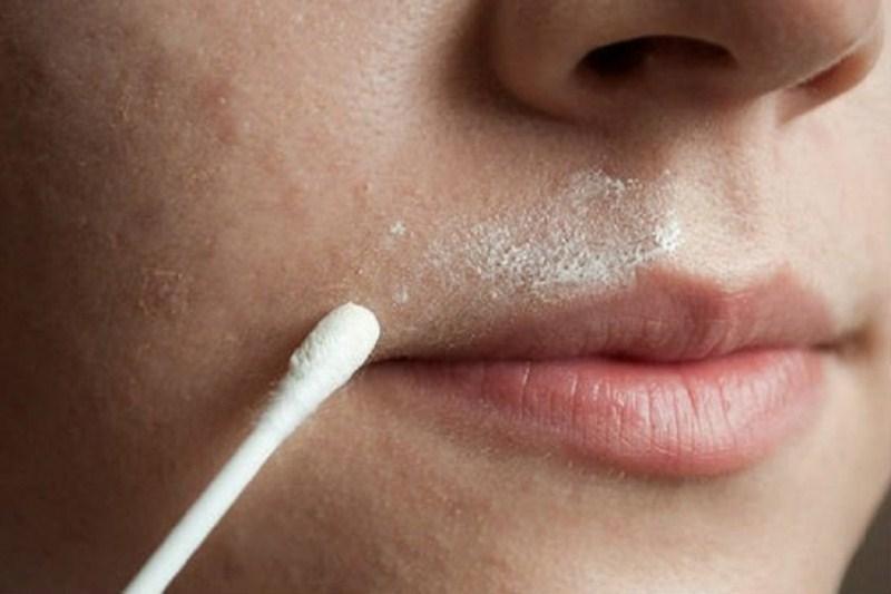 мустачки над устната
