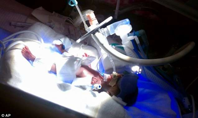 Най-малкото бебе в света