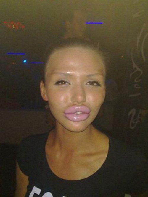 Пластична операция на устни