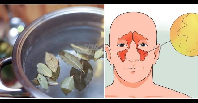 Как да се отървете от псориазис - методи за лечение на заболяване - Симптоми